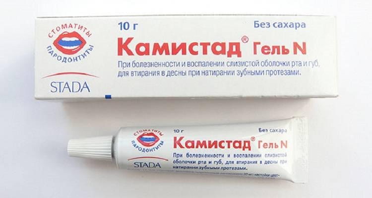 Лечение стоматита у взрослых: лучшие методы лечения в домашних условиях