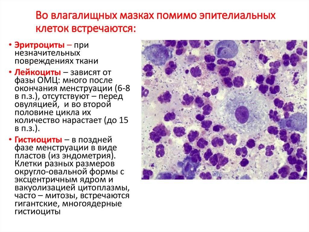 О чем говорит наличие клеток эпителия в мазке?