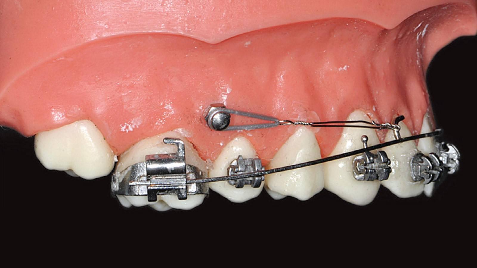 Полная реставрация прикуса с имплантацией зубов
