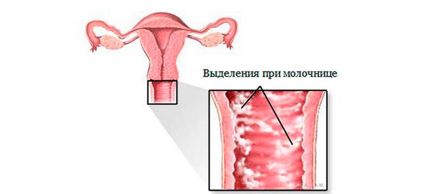 Хроническая молочница, ее симптомы и особенности лечения
