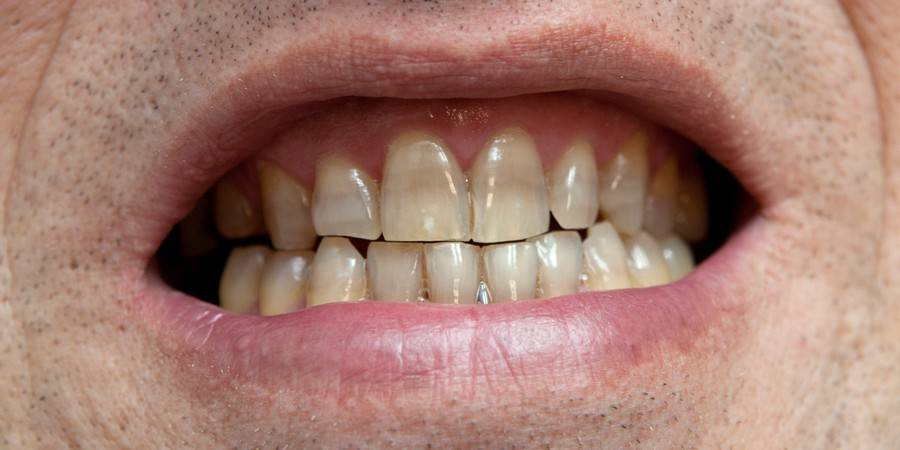 Черный язык после приема антибиотиков