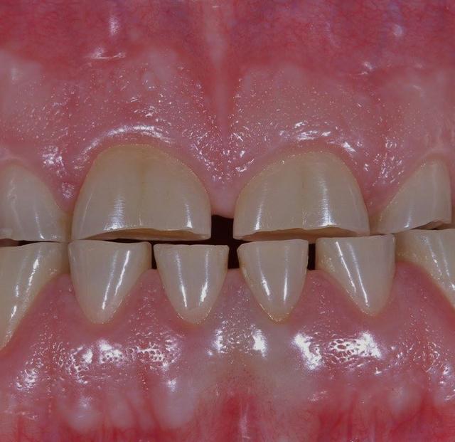 Стираемость зубов: причины и комплексное лечение патологического стирания