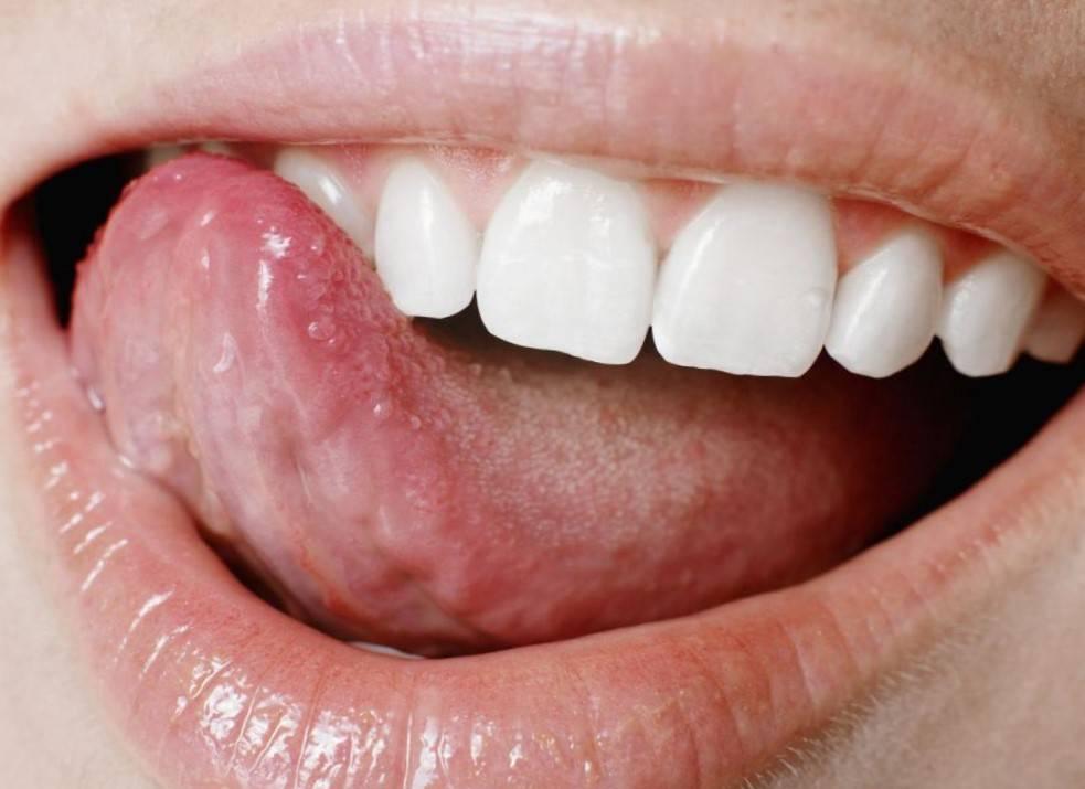 Прозрачные волдыри на внутренней стороне губы: что это и почему выскочили
