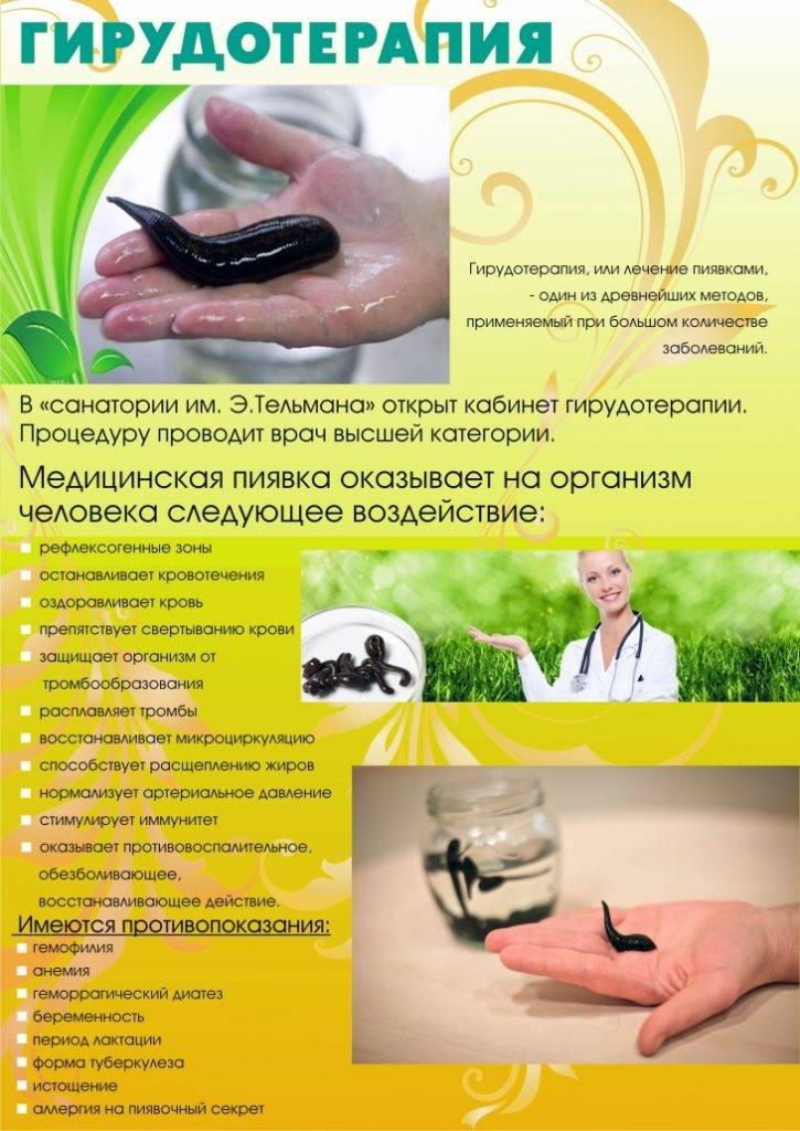 Гирудотерапия: показания и противопоказания к лечению пиявками