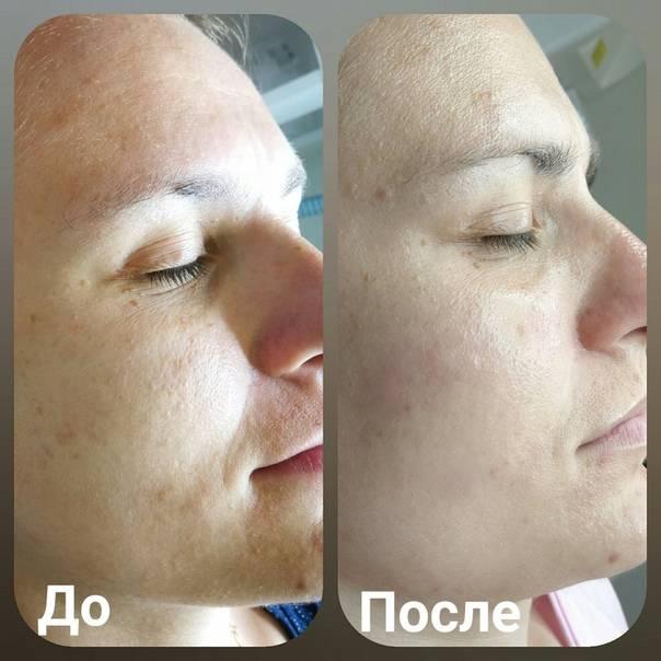 Карбоновый пилинг – результат технологических достижений в эстетической косметологии