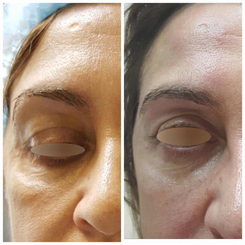 Как проводится удаление мешков под глазами?
