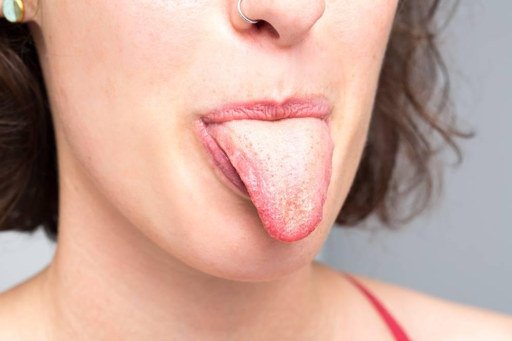 Причины, симптомы и лечение молочницы у женщин во рту
