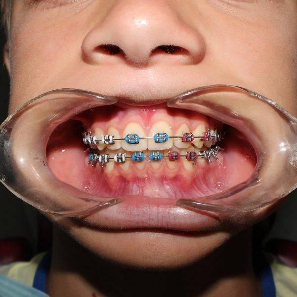 Зубы после брекетов разъехались — что делать?