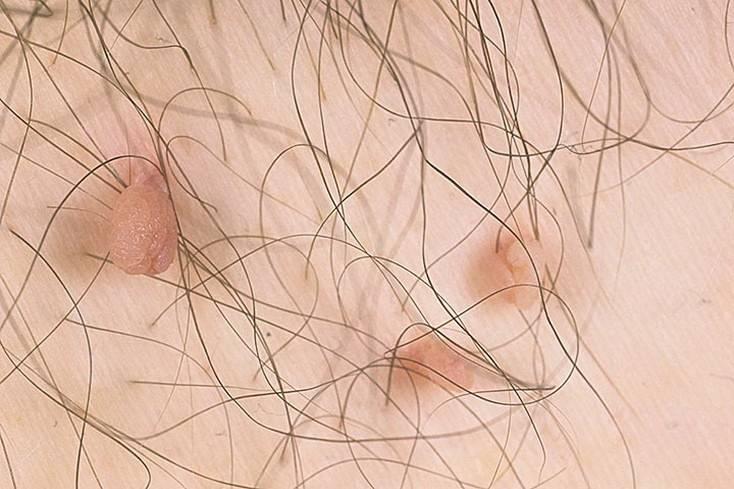 Контагиозный моллюск у женщин