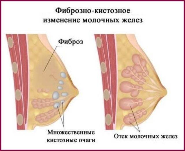 Как и чем лечить фиброзно-кистозную мастопатию