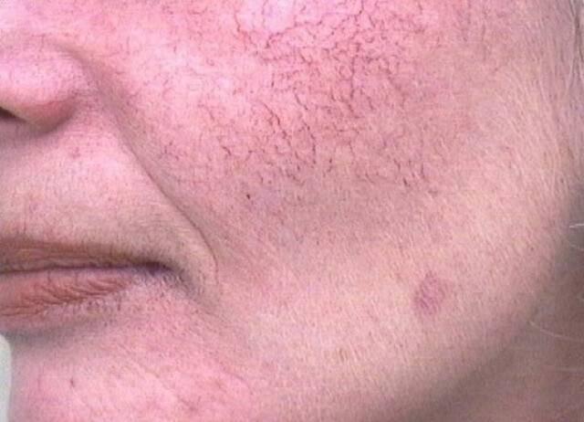 Как лечится купероз (капиллярная сетка) на лице и можно ли убрать (удалить) сосудистые звездочки с тела в домашних условиях