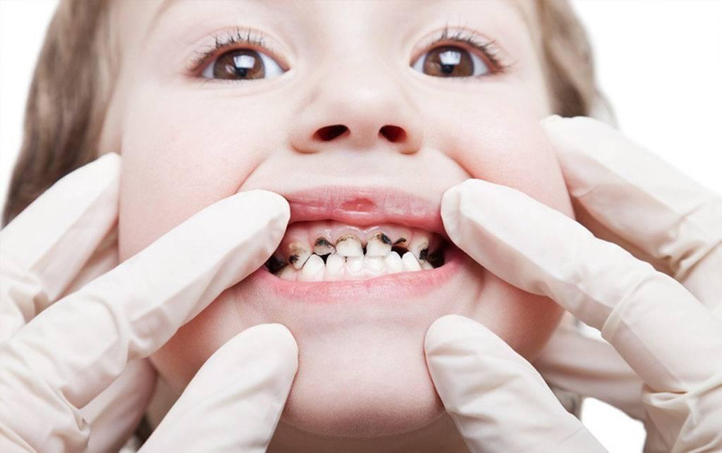 Уход за зубами малыша с рождения