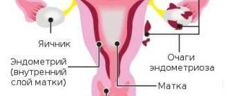 Как влияет на зачатие эндометриоз матки 1, 2 степени: планирование в молодом возрасте и можно ли забеременеть после 40 лет