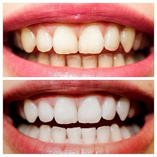 Что лучше выбрать: чистку или отбеливание зубов, какие есть отличия?