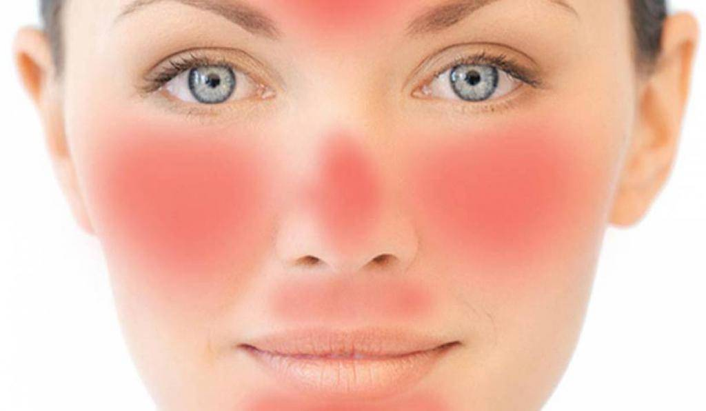 Боль в кончике носа: причины, лечение и профилактика