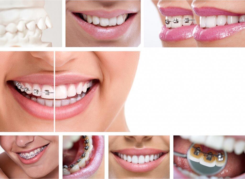 Как меняются черты лица после ортодонтического лечения брекетами