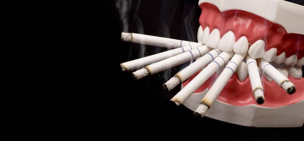 Можно ли курить при имплантации зубов