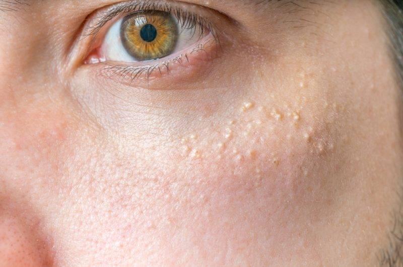 Милиумы (просянка, белые прыщи, белые угри) на лице у взрослых