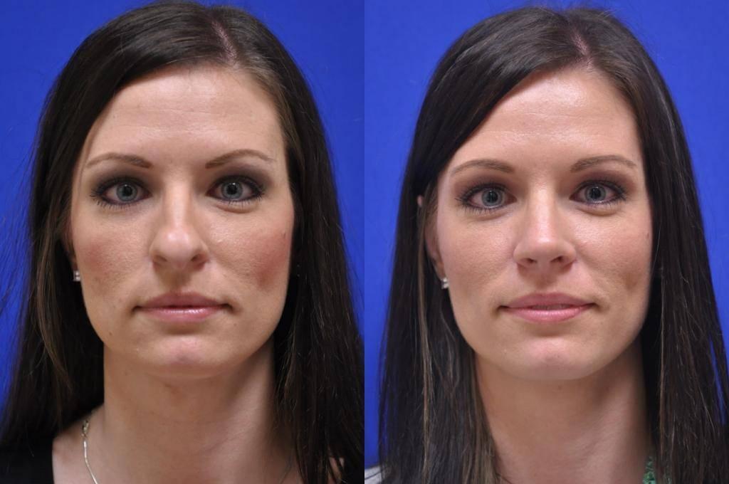 Пластика щек и правка скул- уменьшение и удаление комков биша: фото до и после