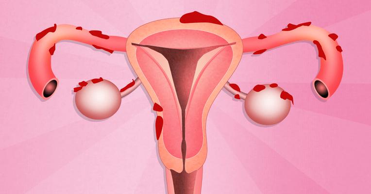 Сильные боли при эндометриозе матки и яичников в области живота при месячных
