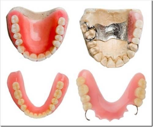 Краткий обзор видов зубных протезов