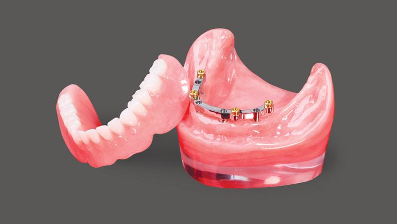 Балочный протез на имплантах – преимущества, цены и отзывы
