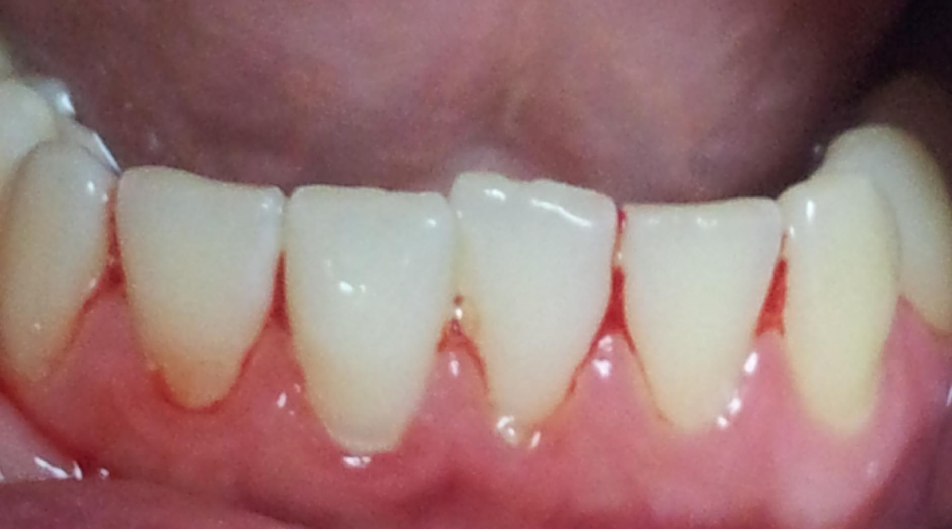 Воспаление десны под коронкой зуба