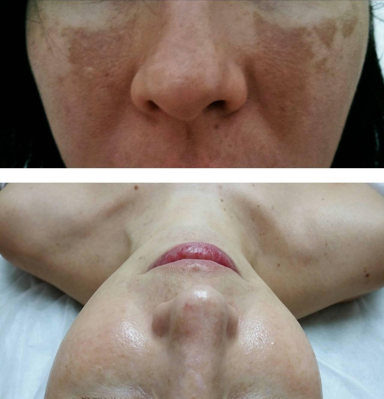 За и против кротонового пилинга у косметолога