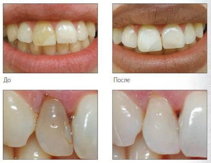 Можно ли отбелить мертвый потемневший зуб