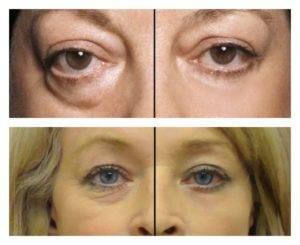 Гепариновая мазь под глаза: способы применения и противопоказания