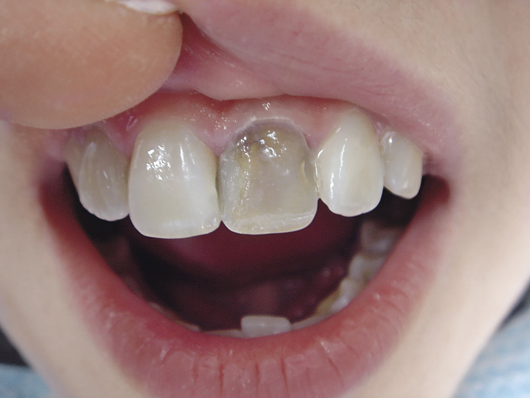 Можно ли потемневший мертвый зуб отбелить