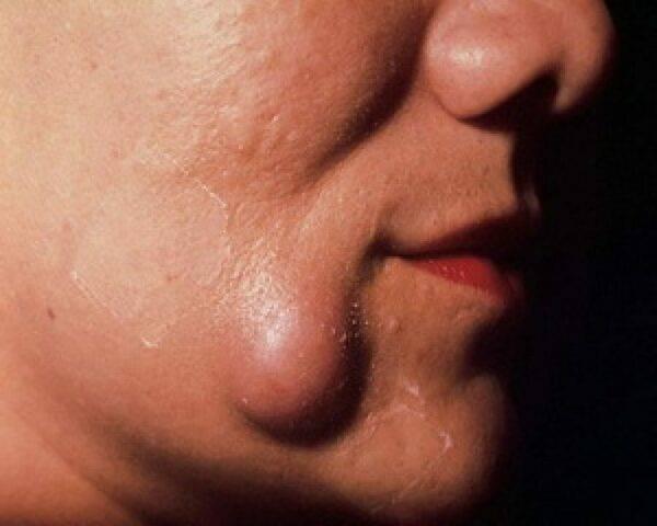Причины возникновения жировиков на лице, их виды и как от них избавиться