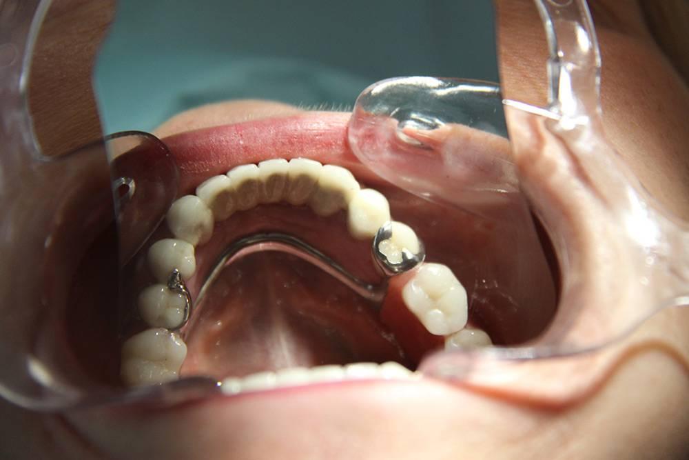 Из какого материала сделаны бюгельные протезы. бюгельные зубные протезы: отзывы пациентов