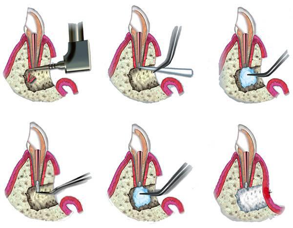 Отек после удаления зуба – это нормальное явление или нет? когда нужно бить тревогу?