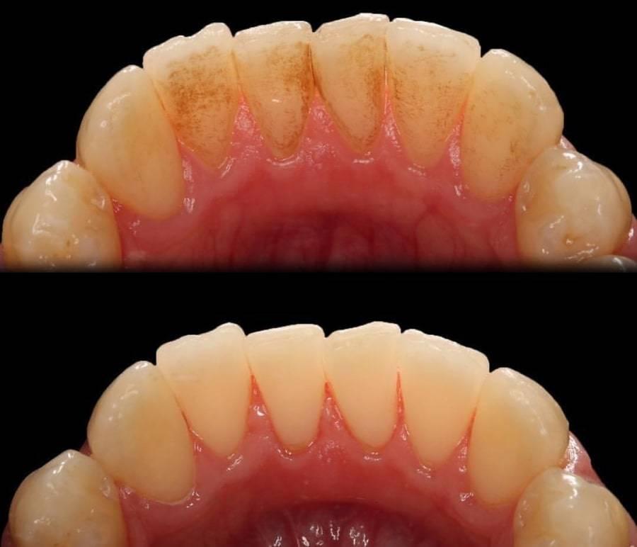 Чистка и отбеливание зубов пескоструйным аппаратом: достоинства и недостаки метода, противопоказания