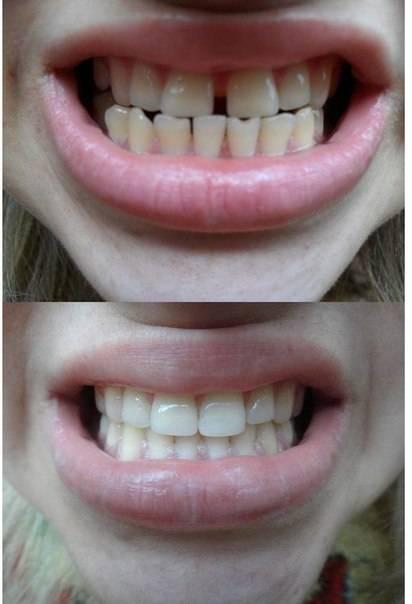 Уход за зубами после брекетов: мероприятия по устранению искривления и образования щели между зубами