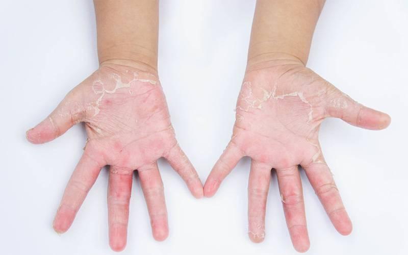 Микробная экзема на руках и ногах — лечение, причины, симптомы