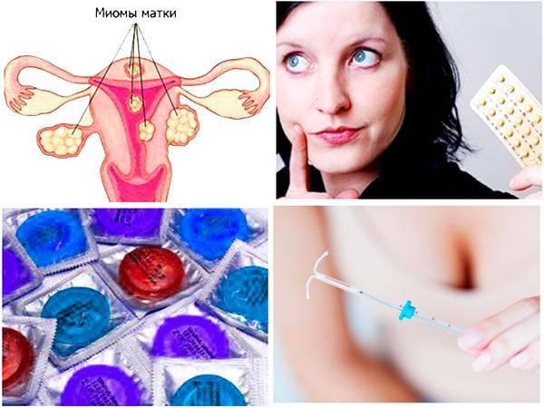 Может ли наступить беременность с внутриматочной спиралью