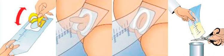 Почему возникает боль при посещении туалета при менструации