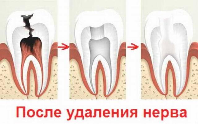 Как распознать и устранить вторичный кариес зубов: симптоматика и технология лечения