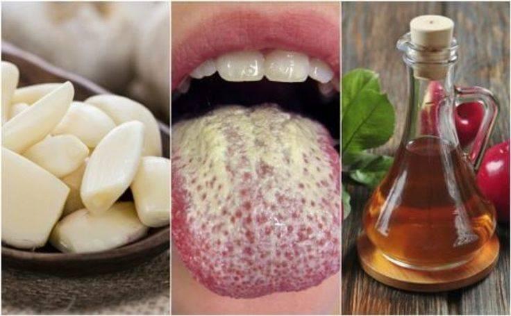 Грибок полости рта: как бороться с кандидозом слизистой и языка?