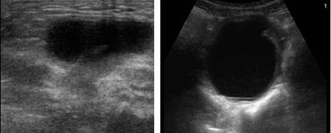 Причины появления и диагностика кисты шейки матки