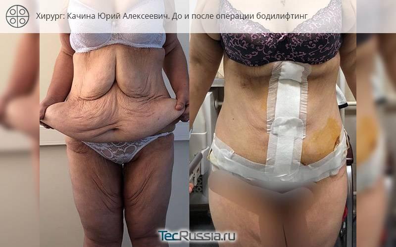 Рельефное тело c bodybuilding липосакцией