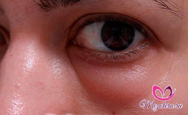 Аллергия на гиалуроновую кислоту: симптомы, лечение, фото