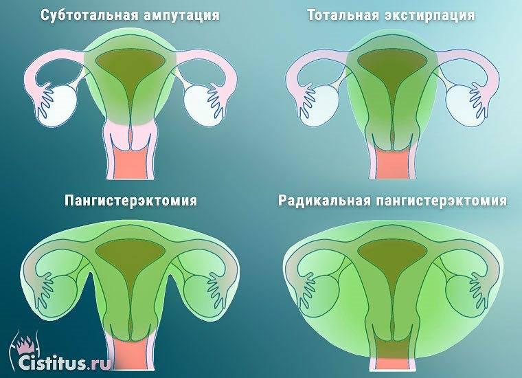 Жизнь без яичников и без матки