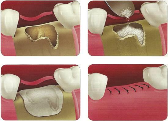 Синус-лифтинг при имплантации зубов