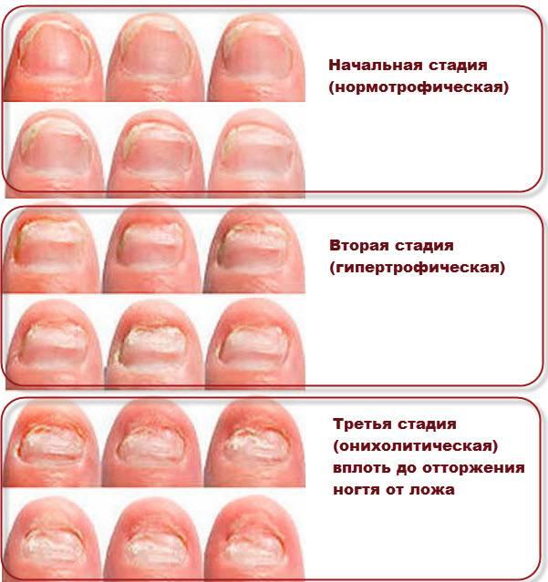 Хромогенный грибок во рту
