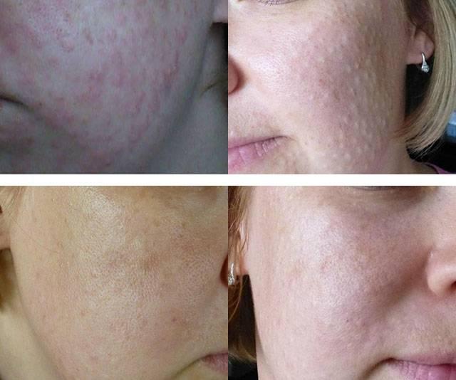 Гиалуаль — особенности использования препарата для омоложения кожи