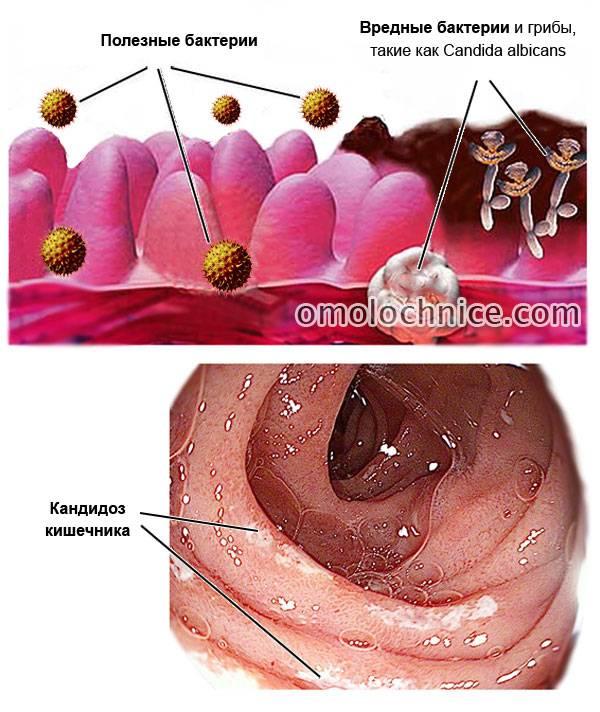 Оптимальная диета при кандидозе полости рта