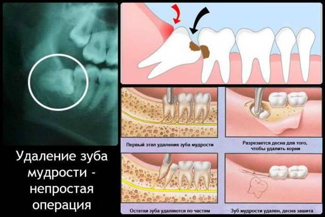 Режется зуб мудрости — как обезболить и избежать осложнений